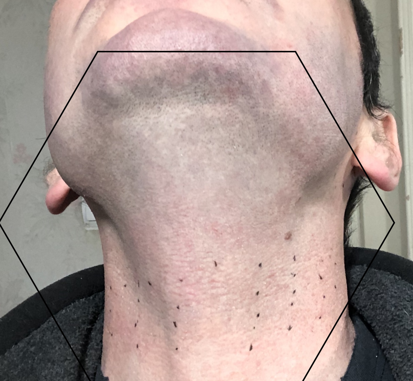 Preliminary Success Using Pre Cooling With Tria Hair Removal Laser
